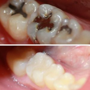 611-Before-and-after-fillings