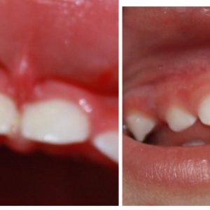 Frenectomy-Rochester-NY-Dentist