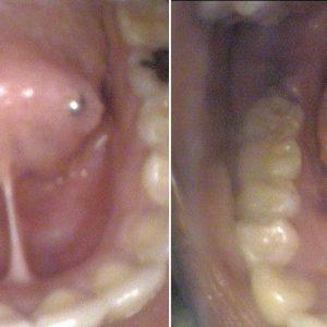 lingual-frenectomy-rochester-NY